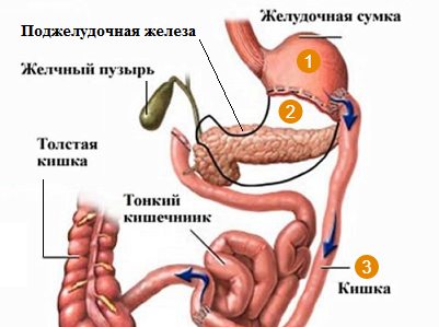Duodenal Switch (БПШ)